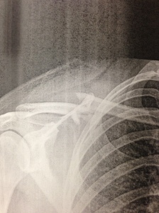 broken clavicle