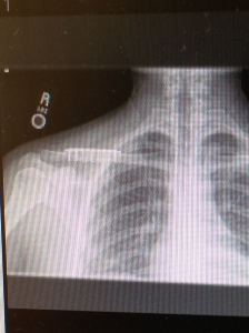 fixed clavicle